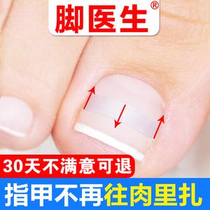 腳醫生甲溝嵌甲矯正器炎正甲貼拉拉腳趾甲貼片指甲長肉裏修腳刀套