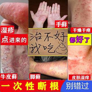 皮肤病专用治療手癣水泡溼疹真菌感染止痒去根牛皮手足脚癣藓药膏