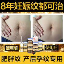 To stretch marks pregnant Chen grain Repair Cream artifact instrument to eliminate postpartum eliminate fat wrinkles firming Bao WEN mother